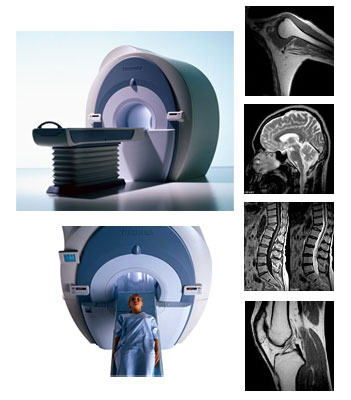 「MRI検査 写真」の画像検索結果