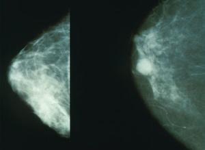 マンモグラフィーでみる乳がんの様子
