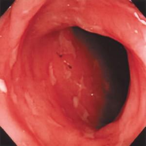 内視鏡でみる大腸の画像です