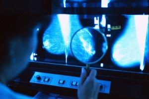 乳房X線検査