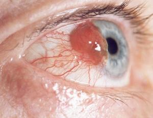 結膜に発生したメラノーマ