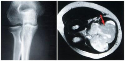 滑膜肉腫の画像です