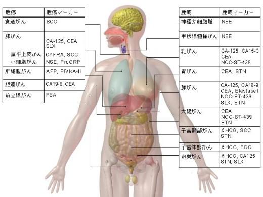 臓器別に見る主な腫瘍メーカー